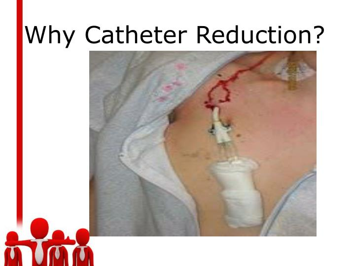Why Catheter Reduction?