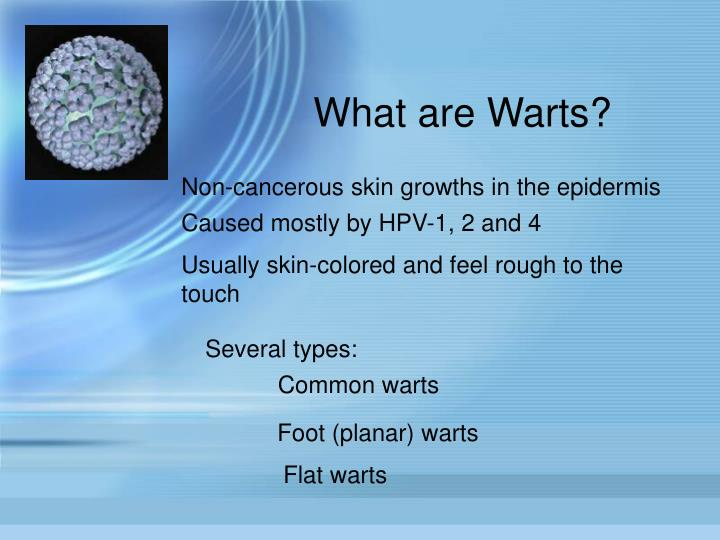 What are Warts?