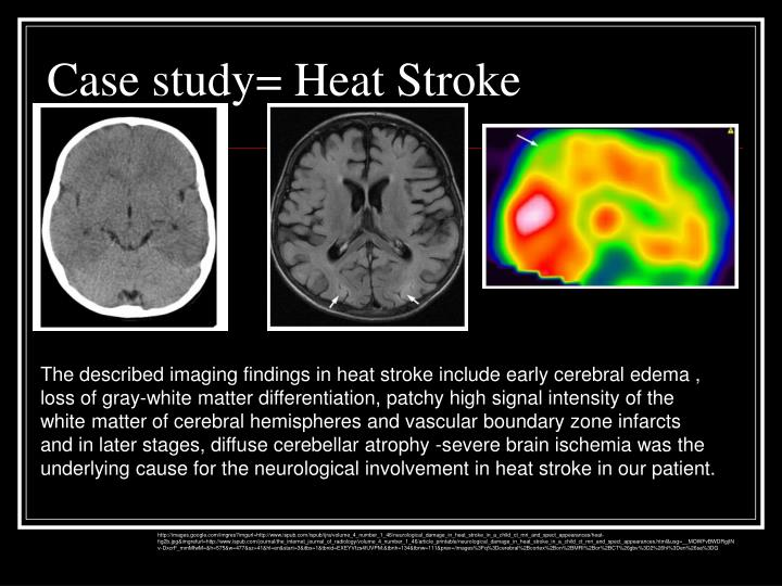 stroke case study I introduction overview of the study cerebrovascular accident: the sudden death of some brain cells due to lack of oxygen when the blood flow to the brain is.
