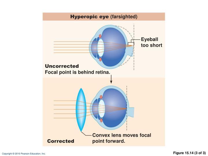 Hyperopic eye