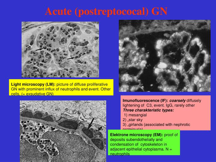 Acute (postreptococal) GN
