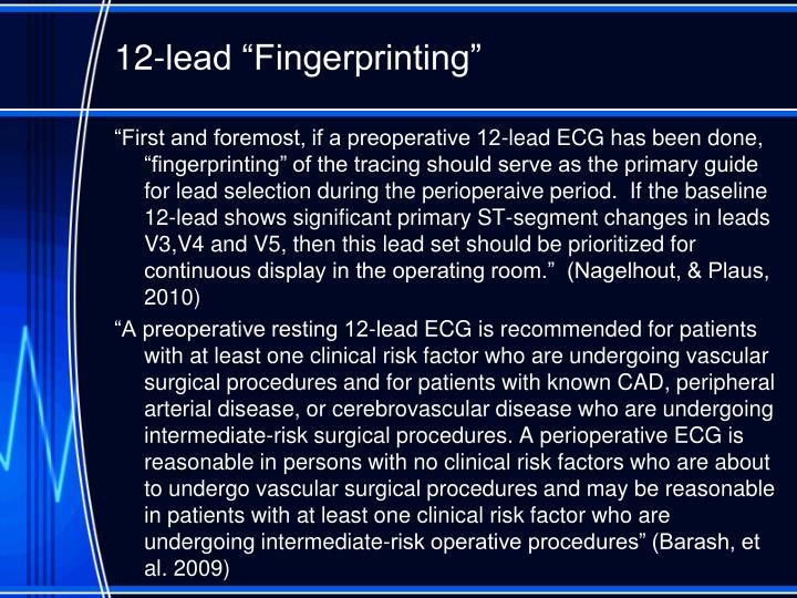 "12-lead ""Fingerprinting"""