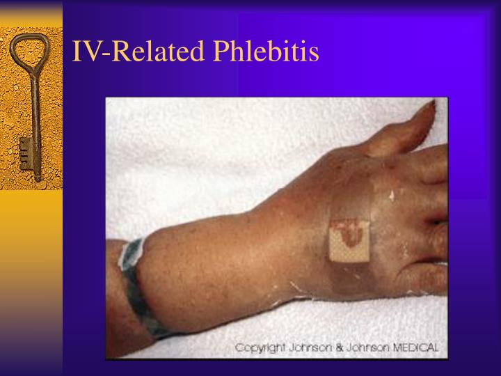 IV-Related Phlebitis