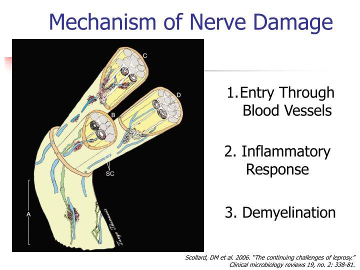 Mechanism of Nerve Damage