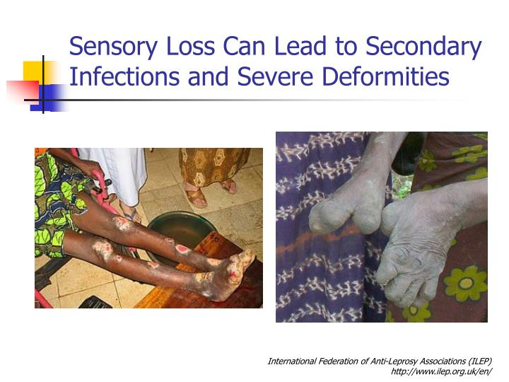 Sensory Loss Can Lead to Secondary Infections and Severe Deformities