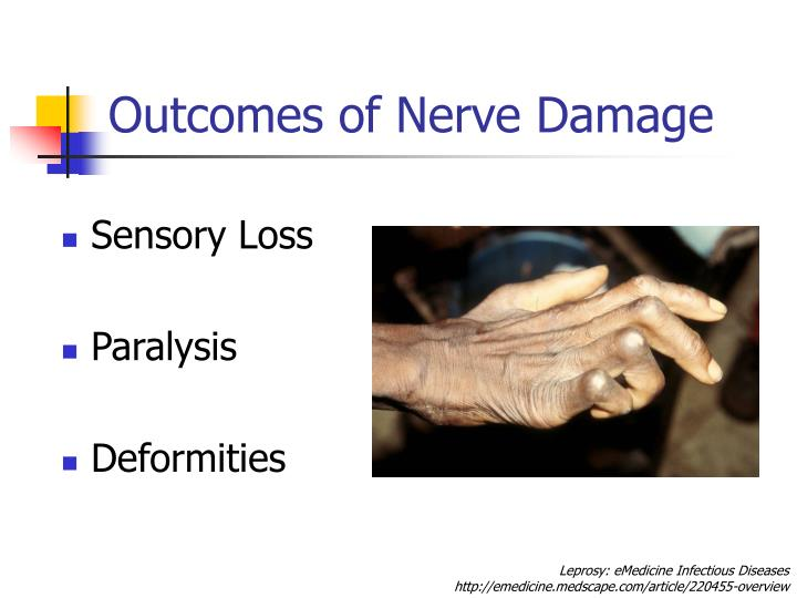 Outcomes of Nerve Damage