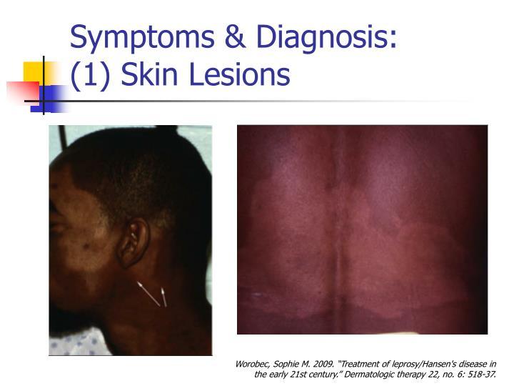 Symptoms & Diagnosis: