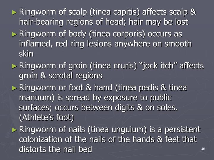 Ringworm of scalp (tinea capitis) affects scalp & hair-bearing regions of head; hair may be lost