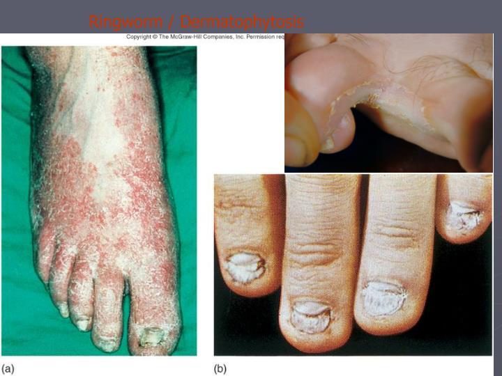 Ringworm / Dermatophytosis