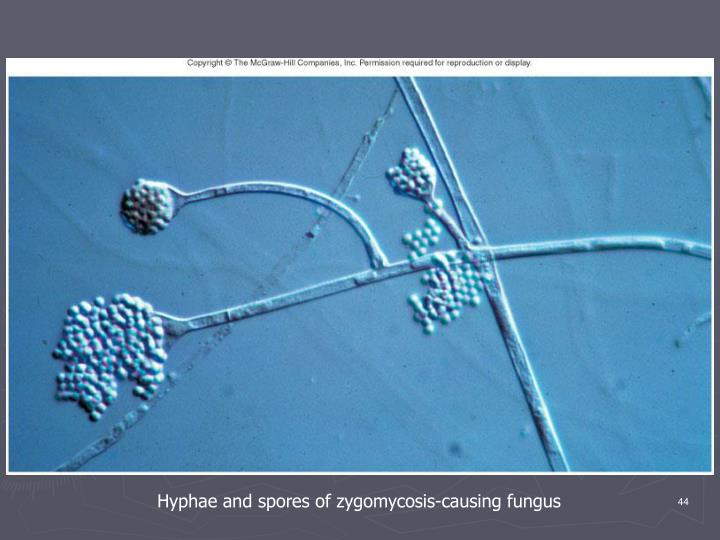 Hyphae and spores of zygomycosis-causing fungus