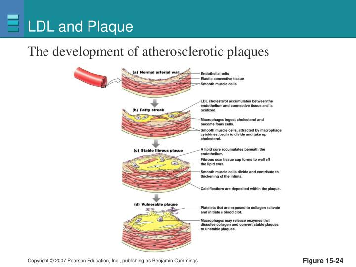 LDL and Plaque