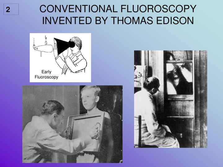 Conventional fluoroscopy invented by thomas edison