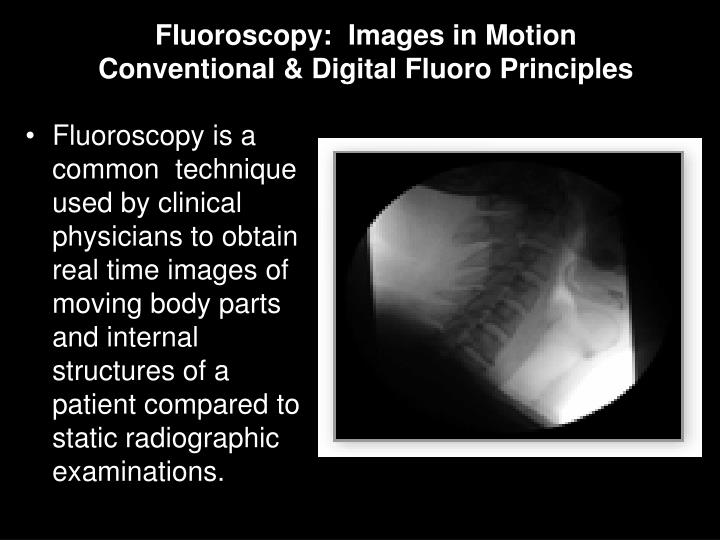 Fluoroscopy is a common  technique used by clinical physicians to obtain real time images of moving body parts and internal structures of a patient compared to static radiographic examinations.
