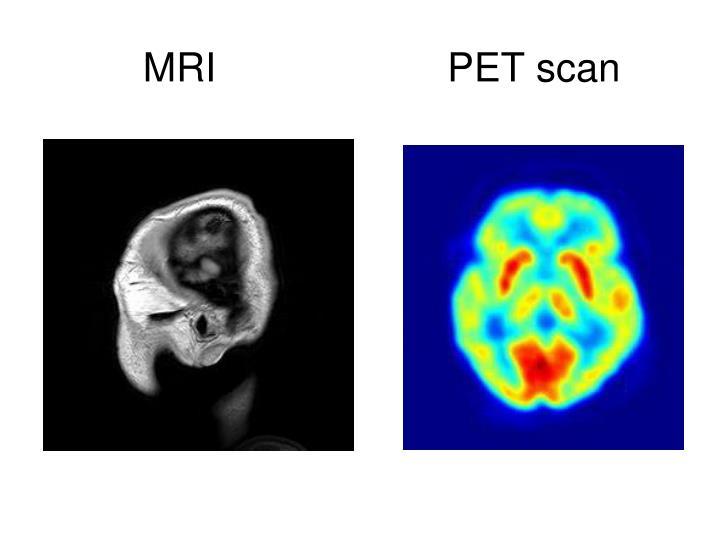 MRI PET scan
