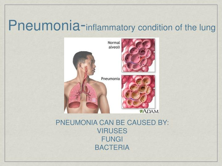 Pneumonia inflammatory condition of the lung