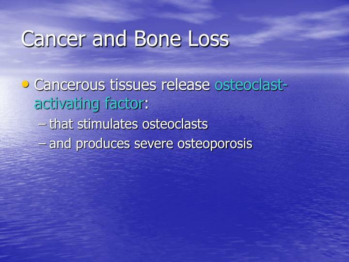 Cancer and Bone Loss