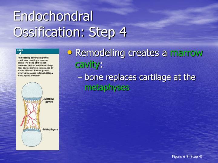 Endochondral
