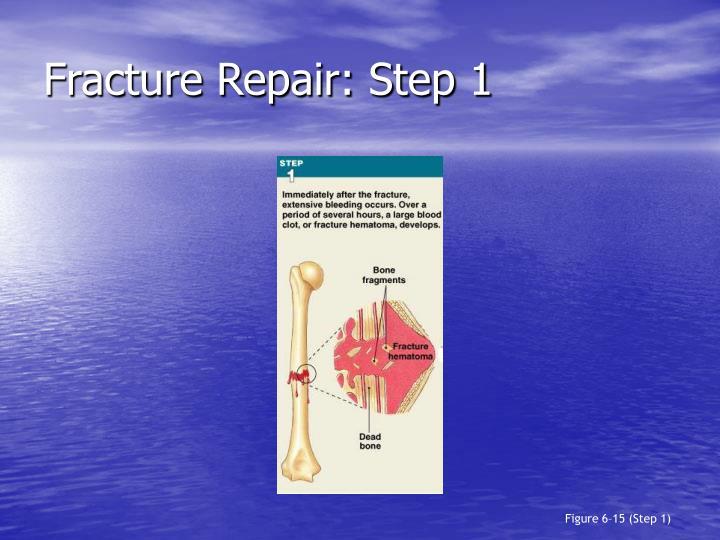 Fracture Repair: Step 1