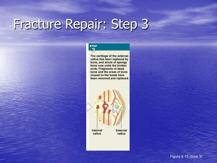 Fracture Repair: Step 3