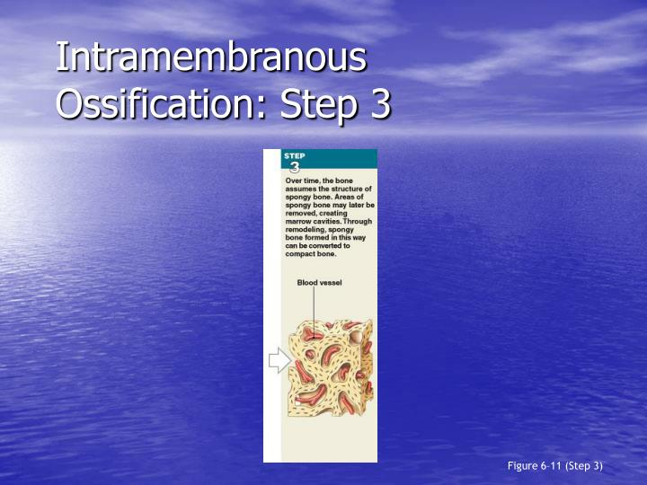 Intramembranous