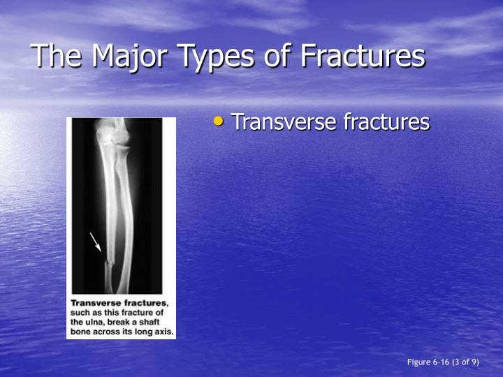 The Major Types of Fractures