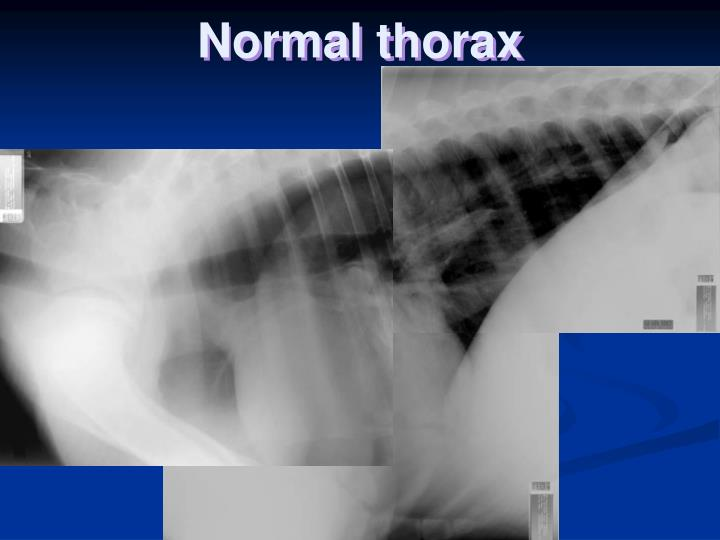 Normal thorax