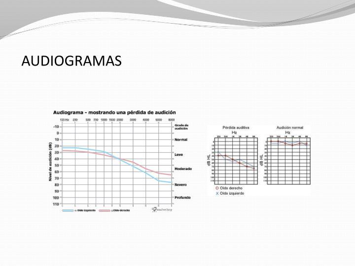 AUDIOGRAMAS