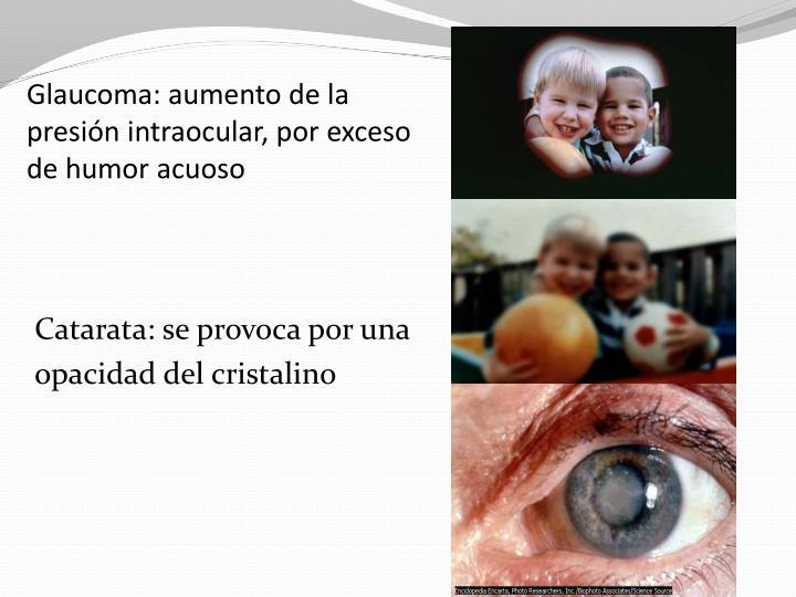 Glaucoma: aumento de la presión intraocular, por exceso de humor acuoso