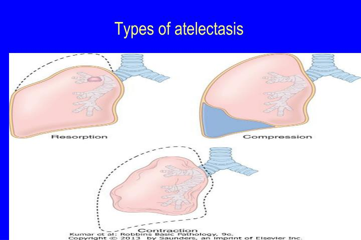 Types of atelectasis