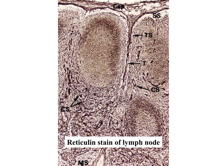 Reticulin stain of lymph node