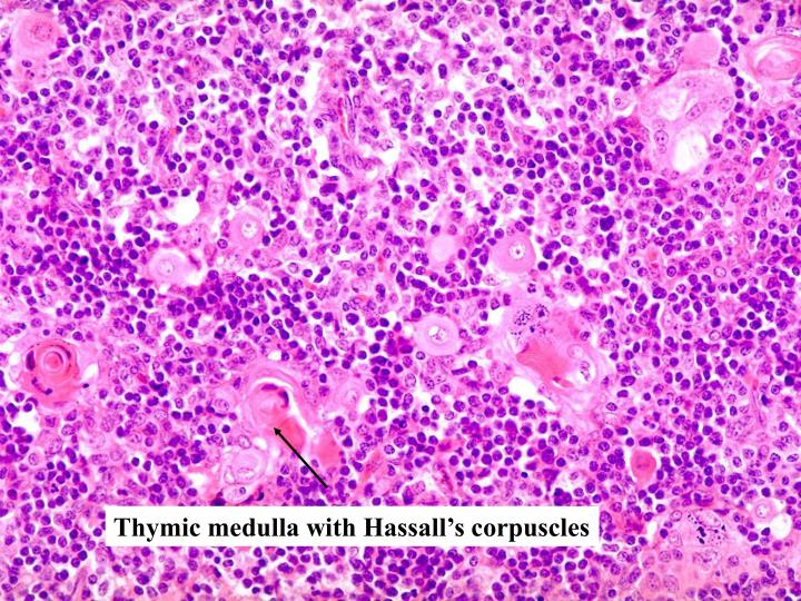 Thymic medulla with Hassall's corpuscles