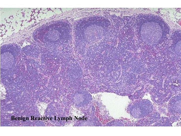 Benign Reactive Lymph Node
