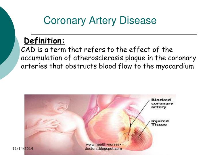 Coronary artery disease1
