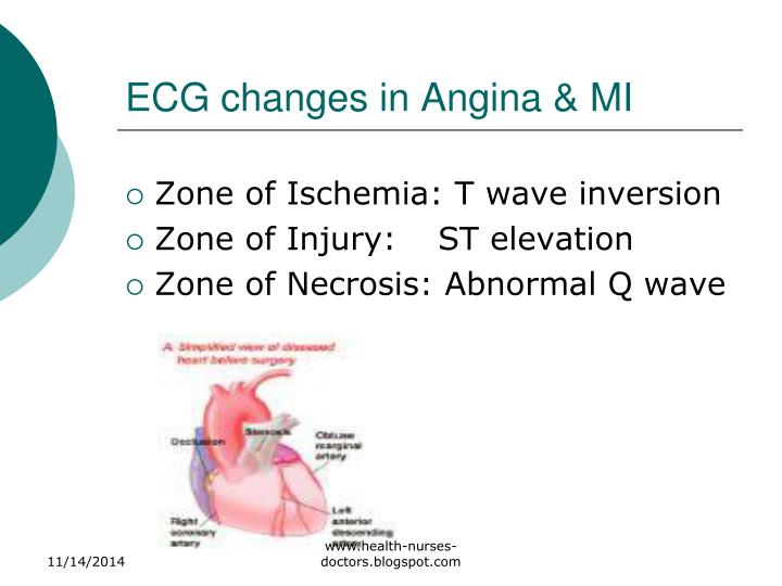 ECG changes in Angina & MI