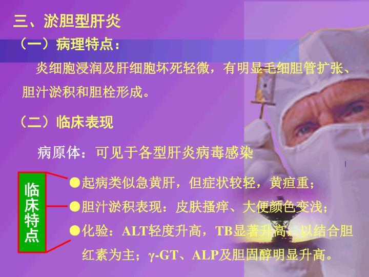 三、淤胆型肝炎