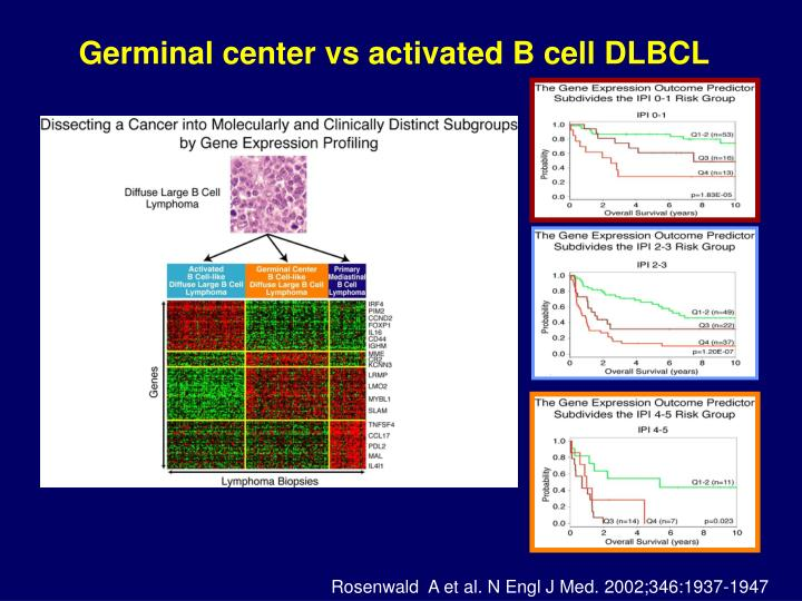 Germinal center vs activated B cell DLBCL