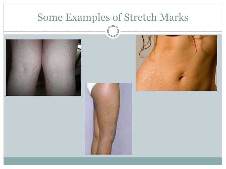 Striae Distensae Clinical Presentation: Physical