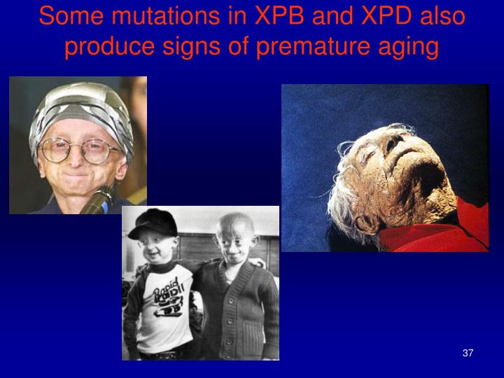 Some mutations in XPB and XPD also produce signs of premature aging