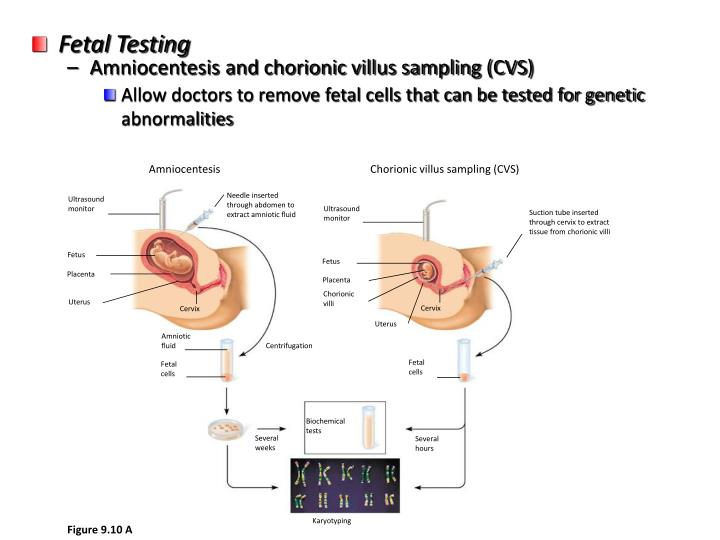 Fetal Testing