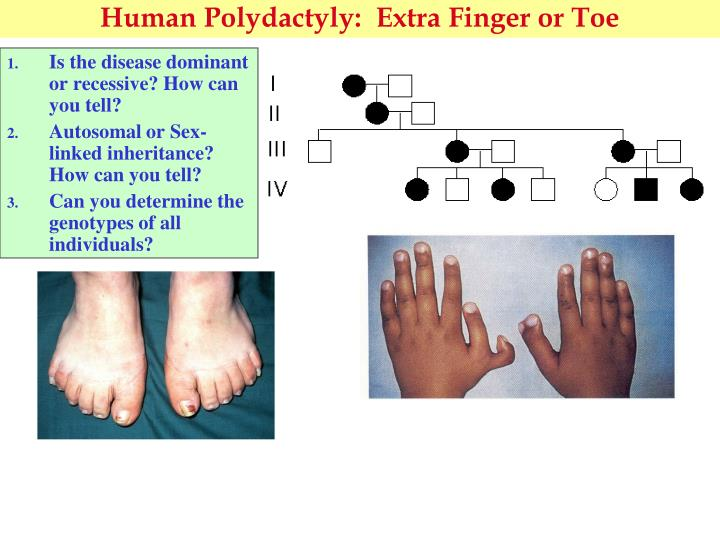 Human Polydactyly:  Extra Finger or Toe