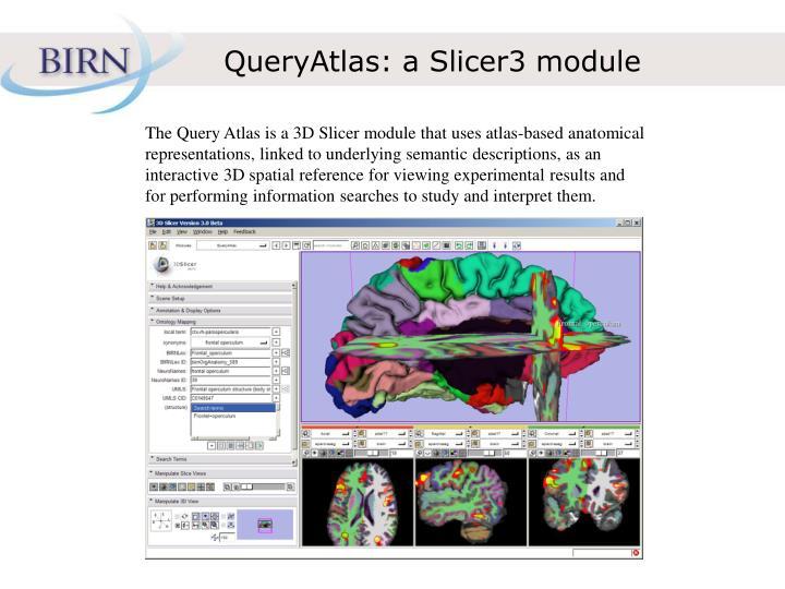 QueryAtlas: a Slicer3 module