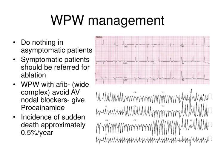 WPW management