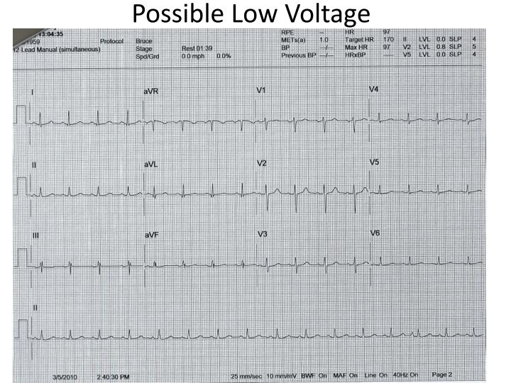 Possible Low Voltage