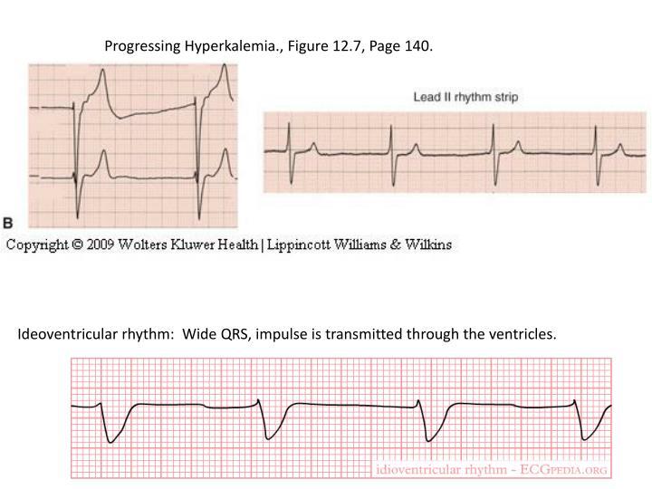 Progressing Hyperkalemia., Figure 12.7, Page 140.