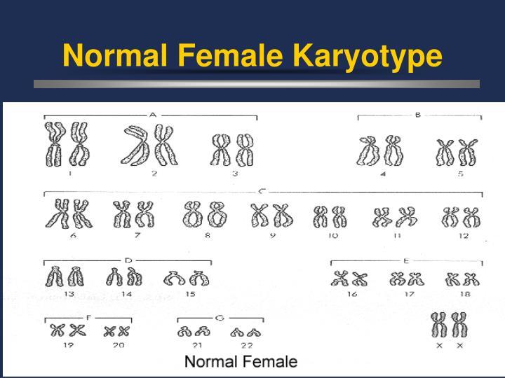 Normal Female Karyotype