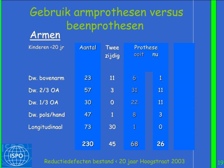 Gebruik armprothesen versus beenprothesen