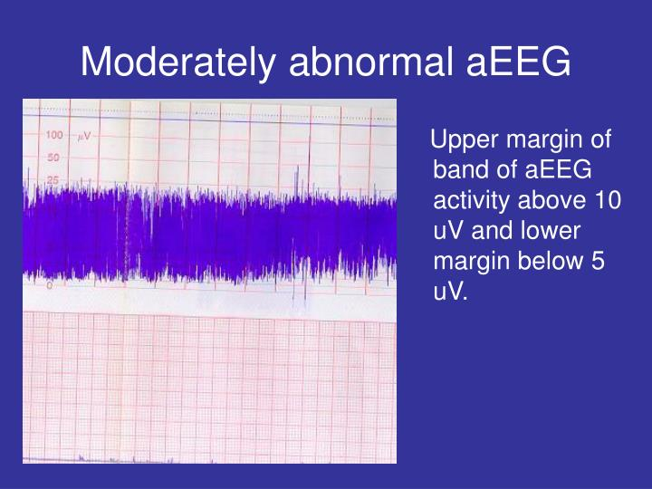 Moderately abnormal aEEG