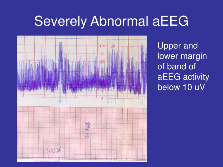 Severely Abnormal aEEG