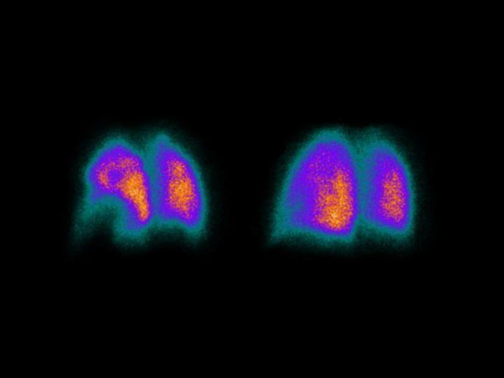 11. Diagnosis of pulmonary embolism