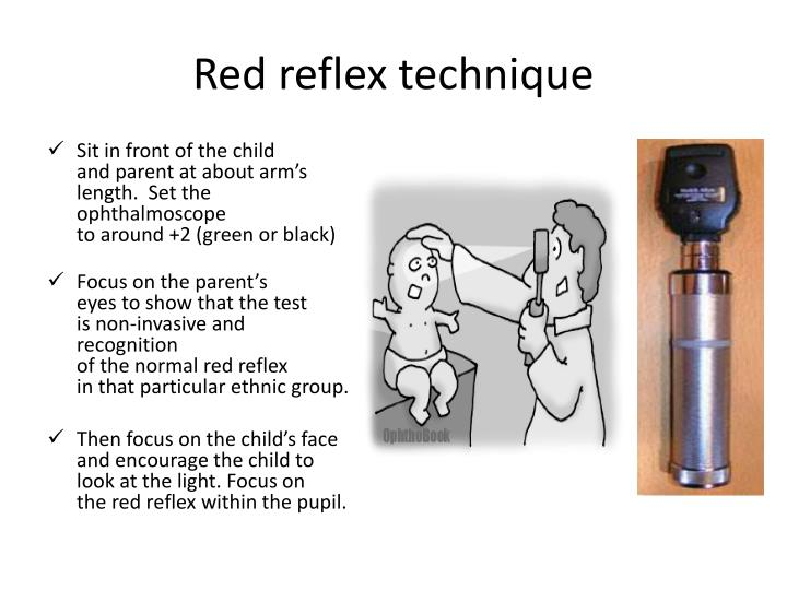 Red reflex technique